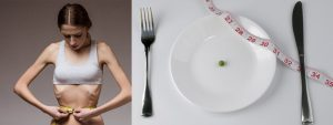 anorexia2